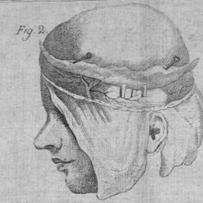 Chiarugi's Dissection 1